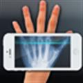 Xray Scan(手机X光人骨透视软件) V1.0.1 安卓版