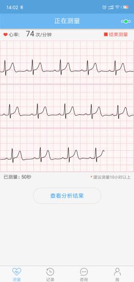 数维康心电 V1.9.60 安卓版截图2